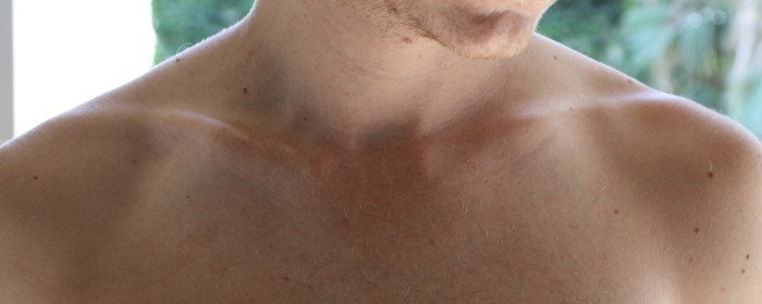 CCBY-SA3.0 /Sub-Vic/wikimedia https://commons.wikimedia.org/wiki/File:Clavicle.jpg#/media/File:Clavicle.jpg